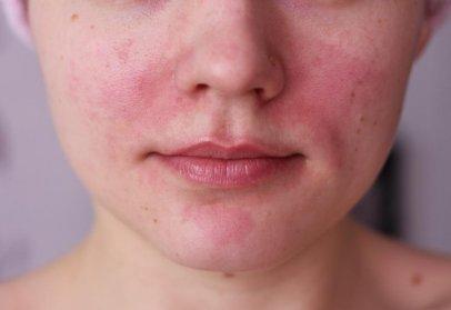 Что делать, если началась аллергия на солнце?